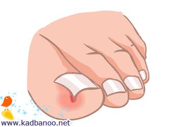 فرو رفتن ناخن پا در انگشت