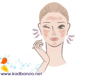 خشکی و خارش پوست در زمستان
